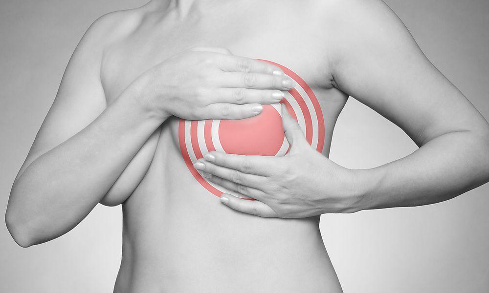 Ratgeber für Patienten mit metastasiertem Brustkrebs